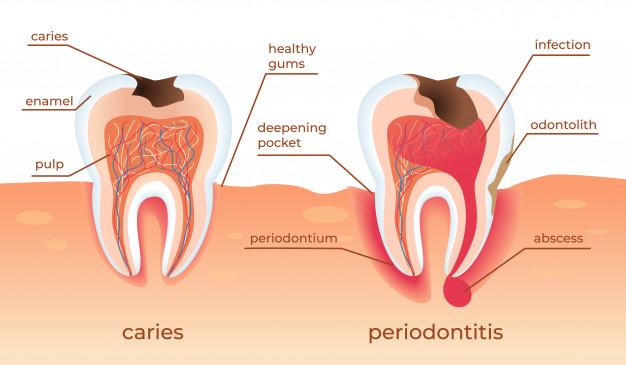 unhealthy-teeth-stand-raw-gums-tooth-decay-dental-blog