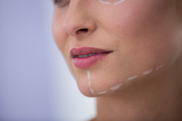 woman-with-marks-drawn-cosmetic-treatment-her-jaw-dental-blog